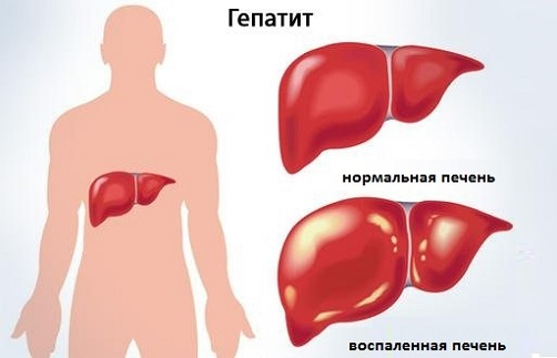 Как выглядит ранняя стадия гепатита