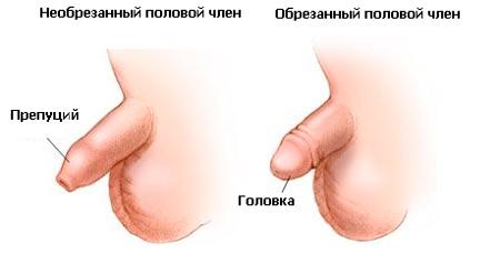 Член после обрезания