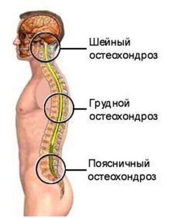 какой остеохондроза