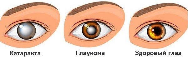как определить катаракту и глаукому
