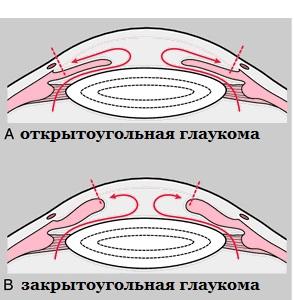 открытая и закрытая глаукома